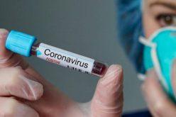 Pacientes que testaram positivo para Covid-19 não apresentam complicações